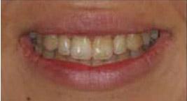 ToothStripsAfter.jpg