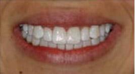ToothStripsBefore.jpg