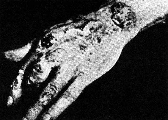 Radiation_Sickness-2.jpg